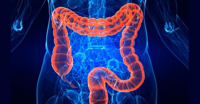 La importancia de un colon limpio